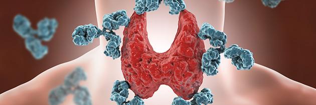 Tiroidite crónica ou de Hashimoto