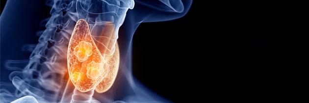 Relação entre poluentes ambientais e cancro da tiroide