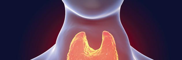 Crescimento anormal da tiroide – Bócio