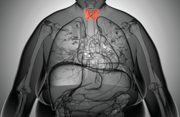 Obesidade e tiroide