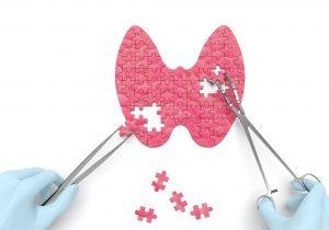Sabe a diferença entre o hipotiroidismo e o hipertiroidismo?
